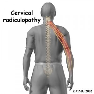 cervical_radiculopathy